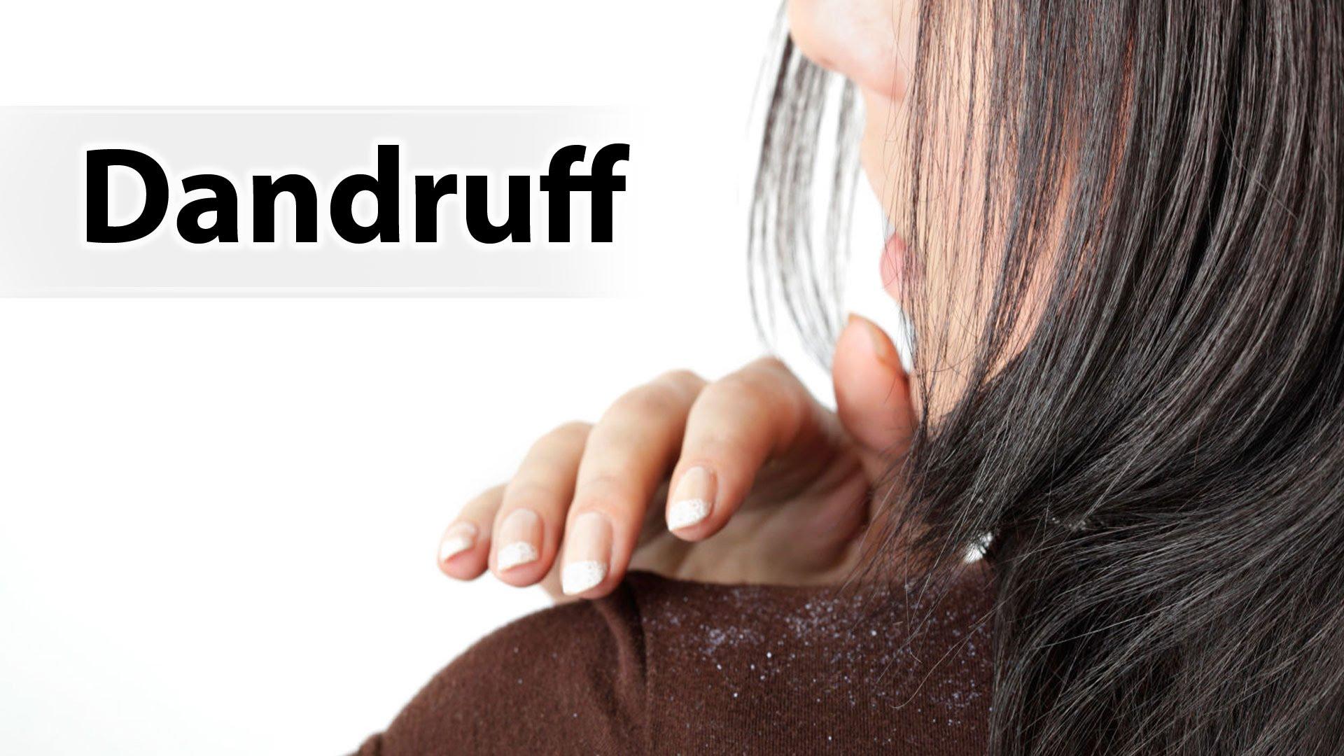 32 home remedies to remove Dandruff