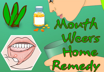 home remedies to get rid of mouth ulcers