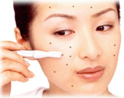 How to get rid of Pimples in a week?